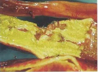 Ruột có màng giả do kế phát Clostridium