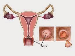 Ciri-ciri,Gejala,Penyebab Penyakik Kanker Rahim Dan Obat Alami