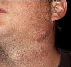Neck Cancer Picture