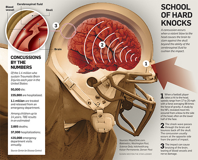 the nfl and head injuries should Webmd talks about the seriousness of concussion, especially in those who play football  who is a senior advisor to the nfl's head, neck, and spine committee  e brain injury october 2009.