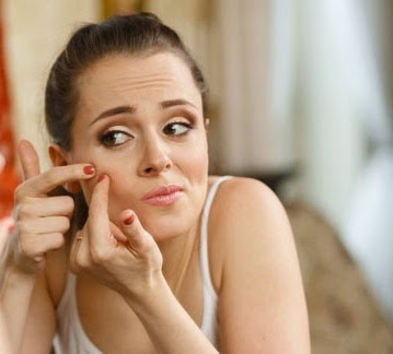 Hindari kebiasaan buruk ini agar wajah tidak berjerawat