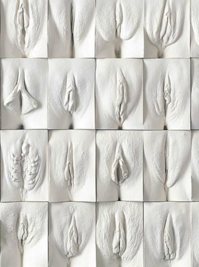 Классификация вагин фото