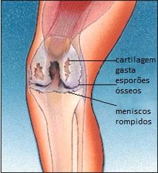 Cracking no joelho sem dor