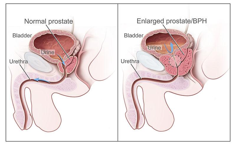 Levitra Prostate Psa Test