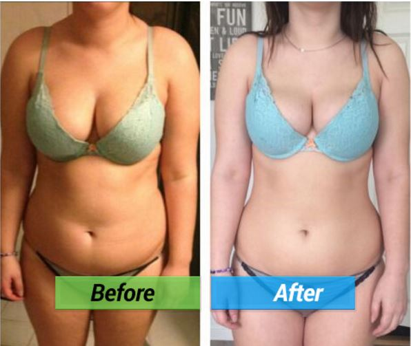The Lean Belly Breakthrough Is The Solution You Have Been Looking For