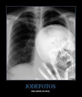 Los Jode Fotos : Radiografia