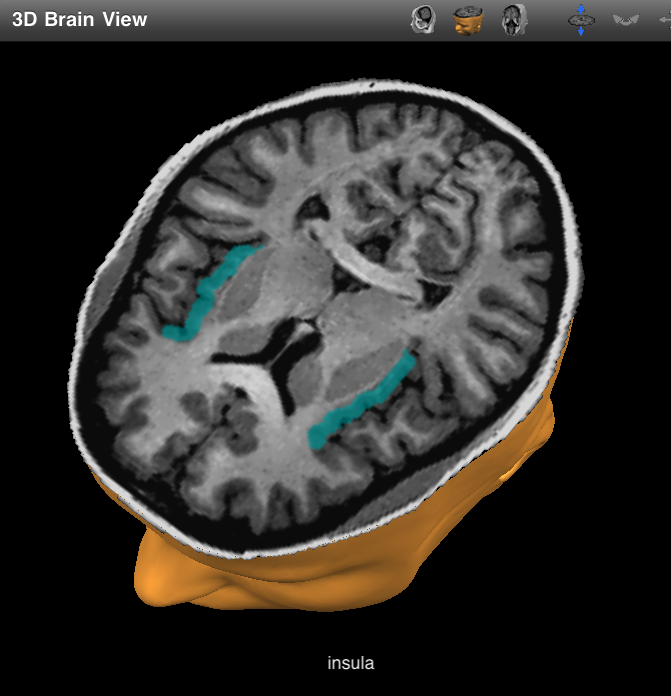Brain Posts