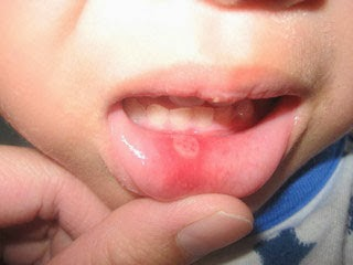 picture of Herpes Stomatitis