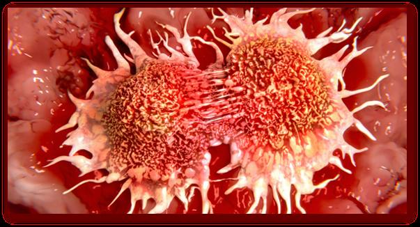 Remedii naturiste contra cancerului