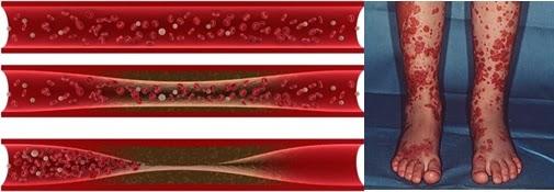 Pengobatan Tradisional Peradangan Pembuluh Darah