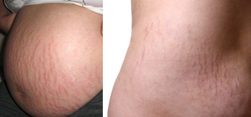 Cara Alami Hilangkan Stretch mark