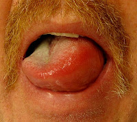 Image of tongue affected by angioedema