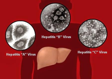 Perbedaan Hepatitis B dengan Hepatitis C