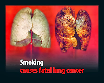 Lung Cancer Causes, Types, Symptoms, Diagnosis, Treatment, Prevention, Home Remedies