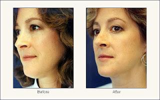 liposuccion antes y despues