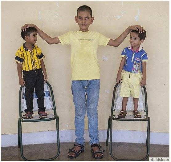 Budak 5 Tahun Tinggi 5 kaki 7 inci Sama Dengan Orang Dewasa