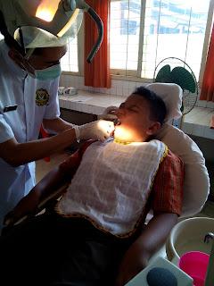 perawat mencabut gigi anak