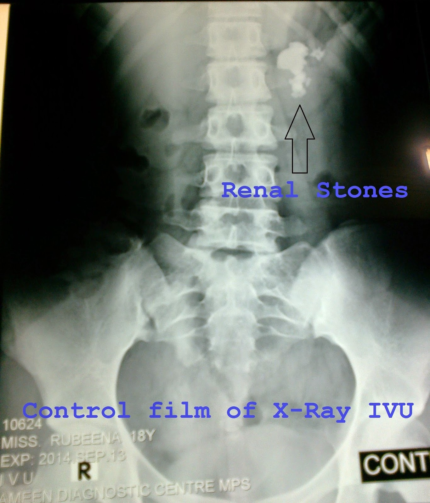 X-Ray KUB Showing Renal Stones