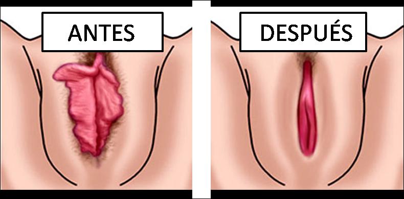 Grandes labios carnosos de la vagina