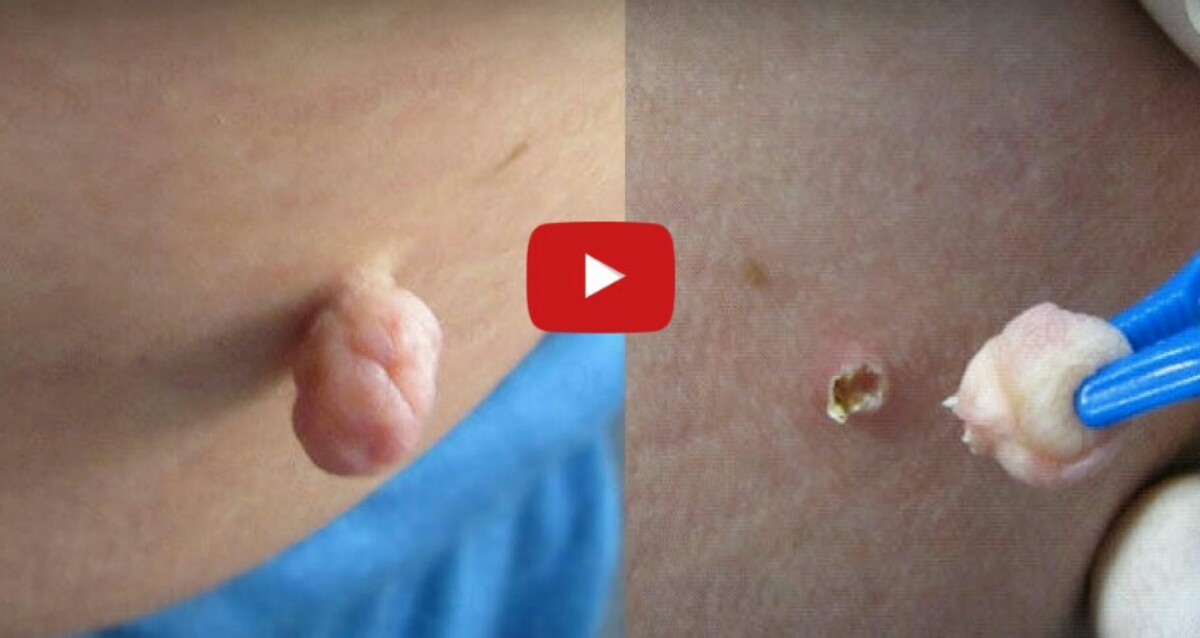 hemorrhoid skin tag removal at home - 28 images - 7 best home remedies to remove skin tags, fissures treatment relief for fissur