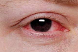 Penyebab Dan Cara Mengobati Mata Merah Dengan Benar