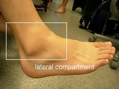 lateral malleolus swelling - photo #2