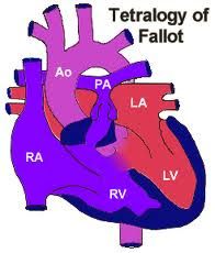 Risk for Decreased Cardiac Output related to Tetralogy of Fallot