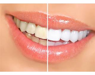 sal fina para dientes blancos