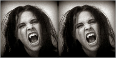 penyakit vampir