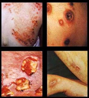 penyakit sifilis wanita yang berbahaya