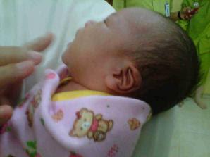 Rafika: Bayi Yang Lahir Dengan Kuping Kanan Berlafas Allah, dan Kiri Berlafas Muhammad
