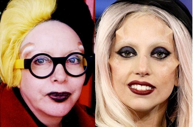 lady gaga horns. lady gaga horns surgery. lady