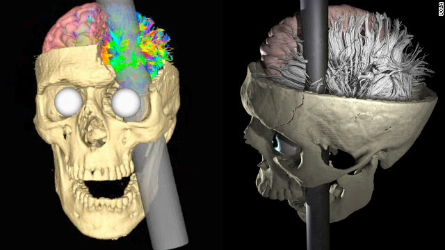 the story of phineas gage essay The best known case of how a person can survive and have a relatively normal  life after a brain injury was phineas gage his story is an amazing one that is.