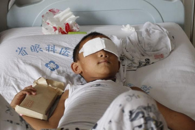 Menino de seis anos que teve olhos arrancados na China, receberá próteses de