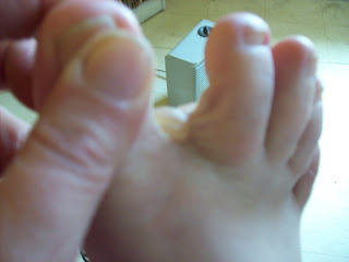 How to heal a blister between toes