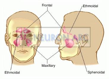 Paranasal Sinuses – Frontal, Maxillary, Sphenoid, Ethmoidal Sinuses