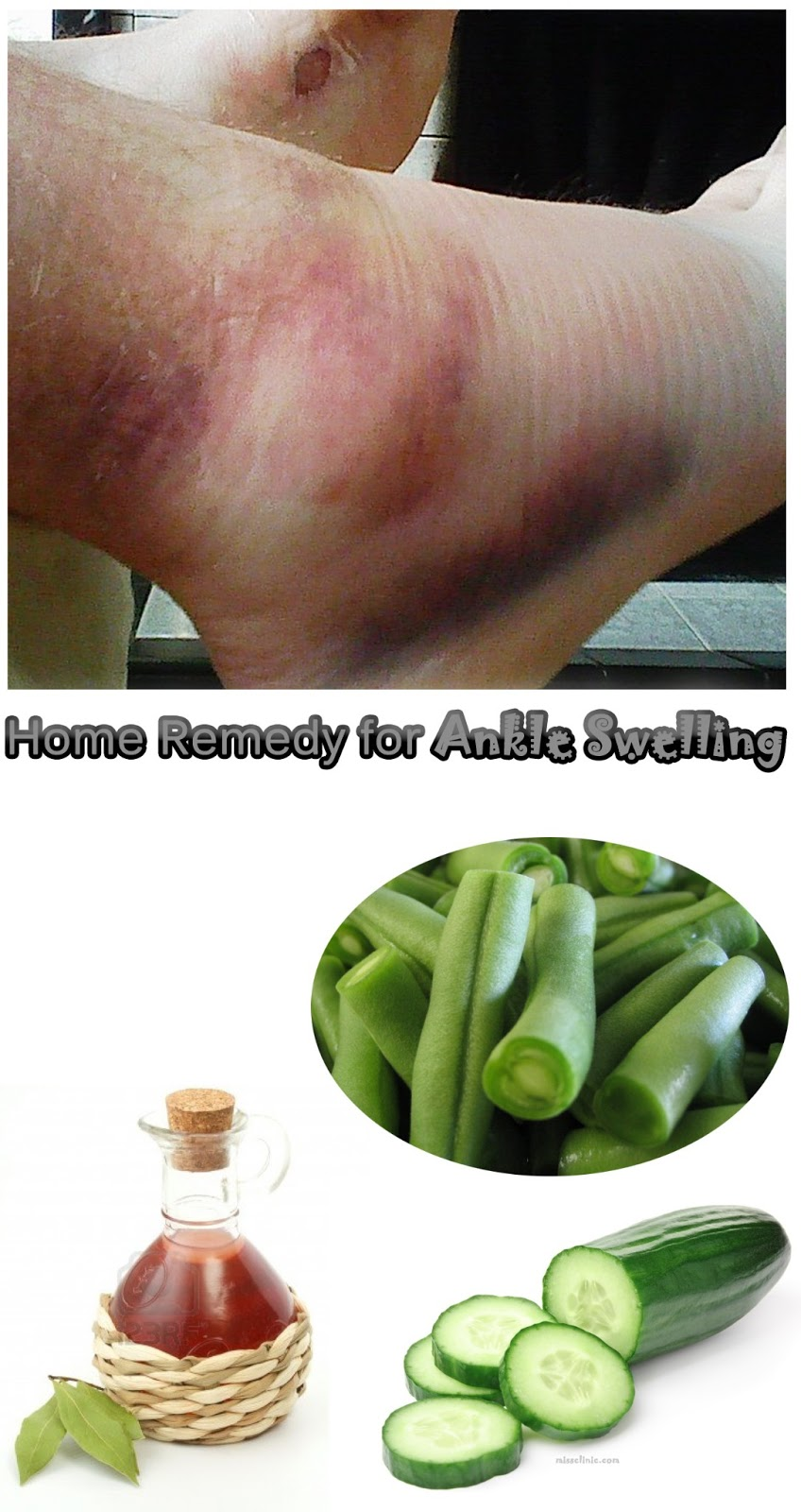 how to avoid swollen ankles in the heat