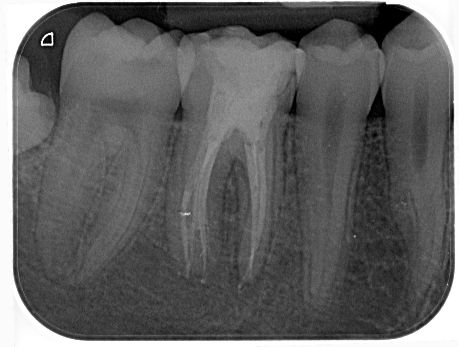 endodontics.es: enero 2013