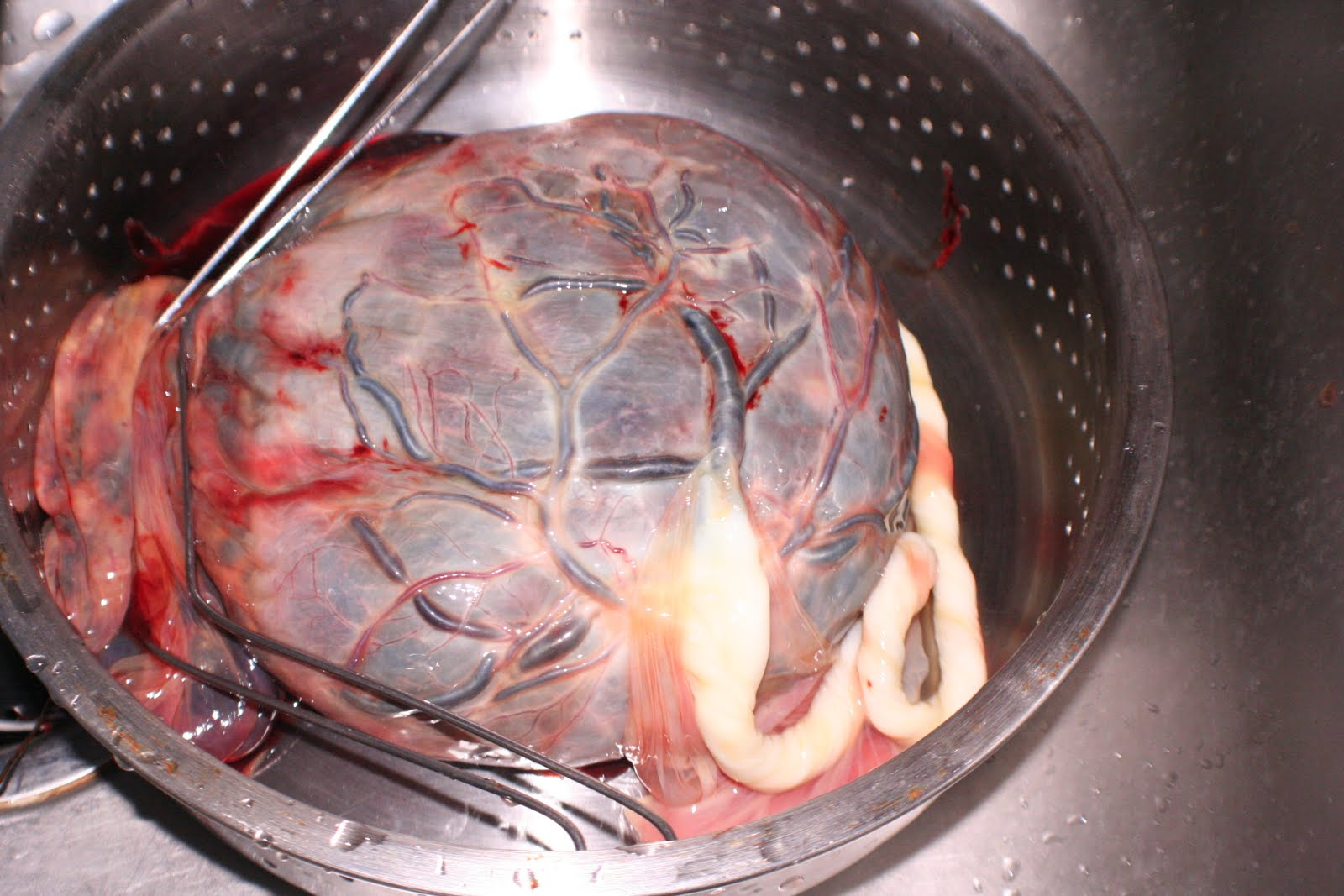 thesis placenta The finestructural changes of the interareolar porcine placenta during pregnancy are described after perfusion fixation of the placenta the change in the thickness of the placental barrier from day 30 to day 110 of gestation is much more evident than after immerson fixation as has been used by all.