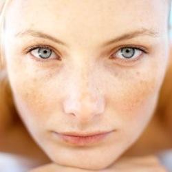 Use eye cream to the skin around the eyes such as retinol cream
