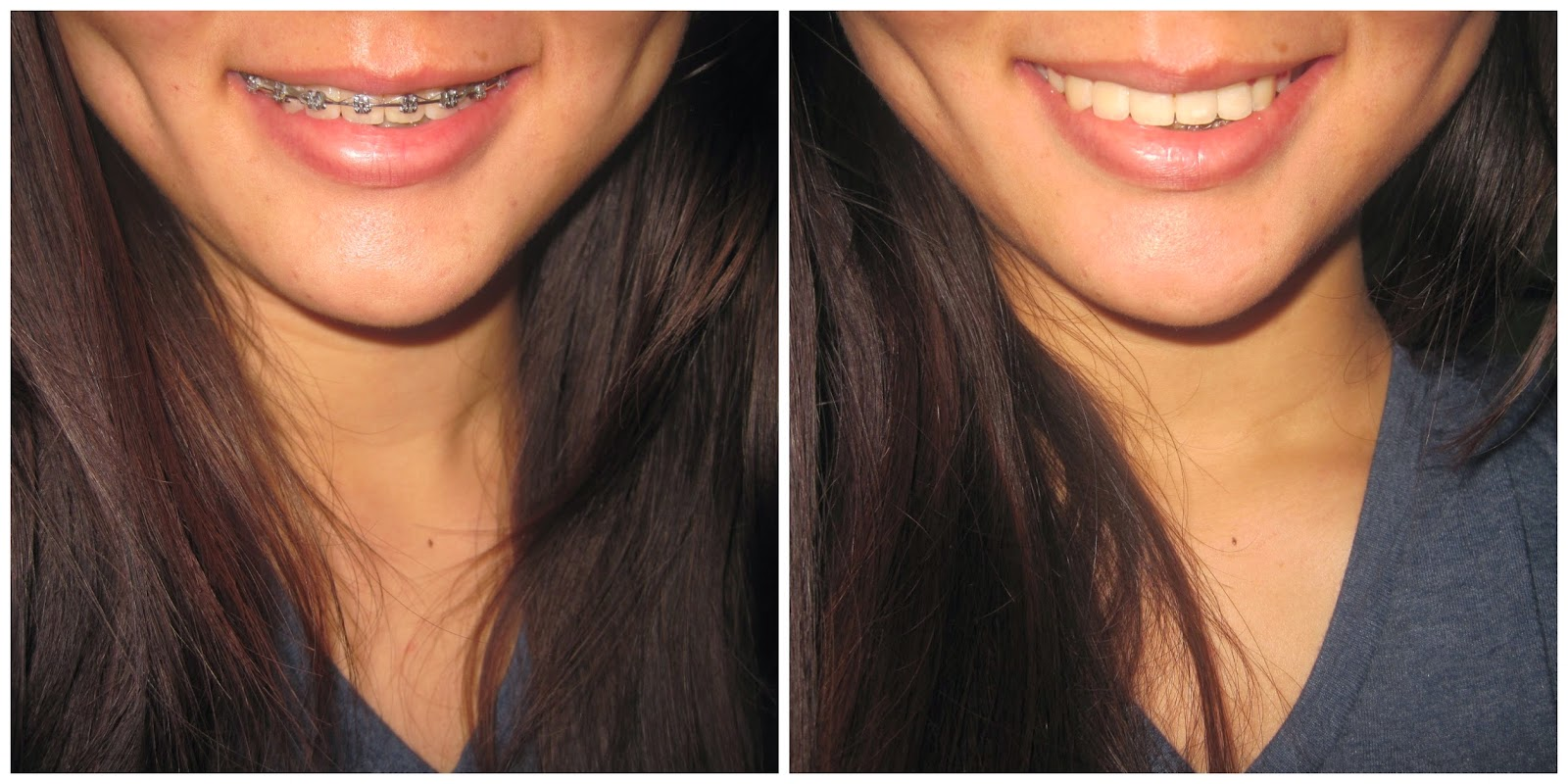 To flawless braces review before and after side by side comparison solutioingenieria Choice Image