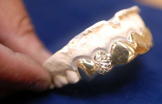 Gold teeth filling,gold for cancer and rheumatoid arthritis