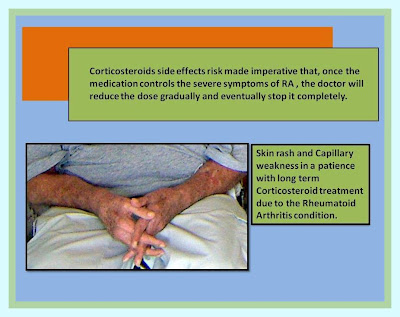 Corticosteroids side effects long term