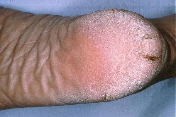 El ungüento de la pigmentación sobre la persona las revocaciones