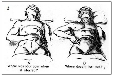 appendix pain location diagram female appendix diagram