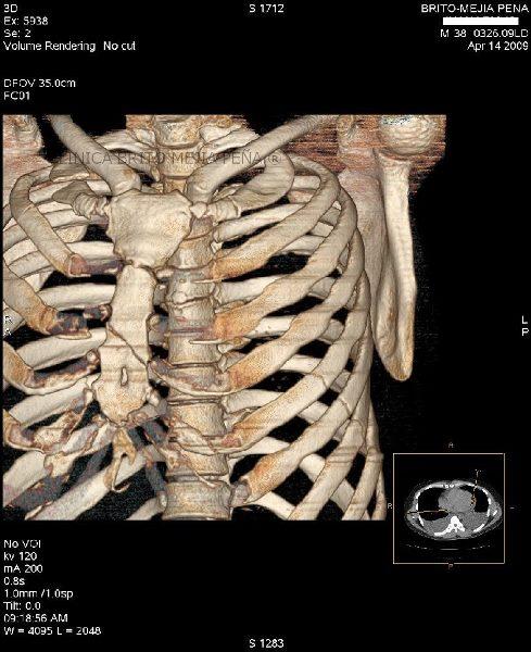 Nuestro esqueleto: Tronco: Fractura del esternón