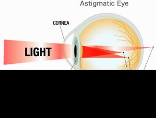 Mengenal Gangguan Mata Silinder (Astigmatisma)