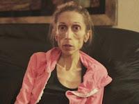 Anoreksia, Aktris Ini Hanya Tinggal Kulit dan Tulang