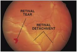 Retinal Detachment Causes, Symptoms, Signs, Diagnosis, Complications, Treatment And Prevention