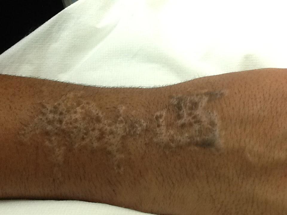 Redding Laser Tattoo Removal